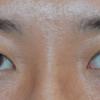 埋没手術で二重にすると、瞼はどう変化するか