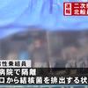 北海道・松前小島で窃盗を働いた北朝鮮人が結核に感染していたことが発覚、スクリーニング体制の不備が明らかに