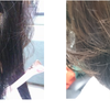 円形脱毛症を自宅で改善するやり方がコレです!