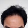 DHI式自毛植毛1年2ヶ月経過
