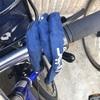 自転車で転倒して記憶を失うほどの大ケガをしました