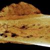 ヒトのがんの最古の痕跡 170万年前の化石で発見