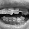 [矯正日記4-3]下の歯の矯正が始まった!上の矯正よりも辛いかもしれない。