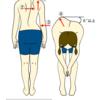 小児の脊柱側弯症の疑いと診断されてから、朝10分のラジオ体操の習慣ができた理由