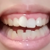 【画像あり】現在の歯並び