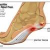 What Leads To Plantar Fasciitis