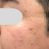 顔イボの治療例
