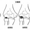 上腕骨小頭離断性骨軟骨炎の病期、臨床症状、理学所見