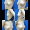コンデンスリッチ脂肪注入(CRF)で豊胸。1か月後の経過。自分の脂肪で自然な柔らかさ。