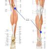 前十字靭帯再建術:術後8ヶ月 痛み出したひざ