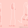 【闘病日記】(58)(2019.12.26)指の腫れは、しもやけ?へバーデン?それともリウマチ?