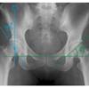臼蓋形成不全の指標(CE角とSharp角)と骨盤正面像の診方