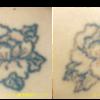 圧倒的症例数!ピコレーザー(エンライトン)でタトゥー除去をしています。1回治療後 3色