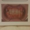矯正歯科認定医のクリニックで矯正治療失敗する