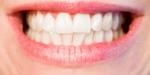 歯列矯正のワイヤーは銀と白のどっちがいい?