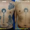 胸からお腹にかけて広範囲にある複数のタトゥーを同時に薄くしています
