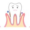 歯周病になってしまうとメチルメルカプタンが大量発生ー!