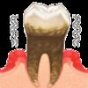 お口の中は大地震!?歯や歯茎を傷めつける歯ぎしり、トラブルを回避する5つのポイント