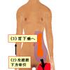 胃下垂とハムストリング筋の硬化の関係について