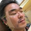 美顔鍼やってもらいました!