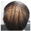 症例:CCJM 54歳男性 頭部の襞