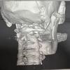 顎関節突起骨折とは