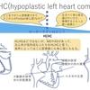 左心低形成症候群(HLHS)ではなくてHLHC!〜HLHSの親戚?HLHC(hypoplastic left heart complex)について。 疾患20