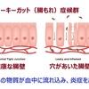 リーキーガット(腸もれ)症候群