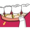 私が初めて歯医者を医者と思った話…その2