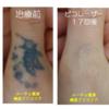 指のタトゥー17回の治療経過の連続写真です