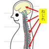 ねじれの位置(首、肩、腰、頭のねじれ)