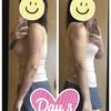 二の腕の脂肪吸引【術後3日目】比較写真あり