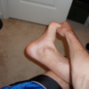 What Causes Plantar Fasciitis To Surface
