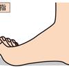 浮き指の原因は足の指だけじゃない:体全体のバランスと重心を整えて体の問題を緩和しよう!