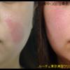 赤み・毛細血管拡張症治療 エクセルV