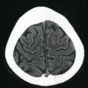 【脳画像】中心溝を同定しよう