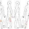 整動鍼●活法  腸脛靭帯炎の症例
