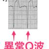 心筋虚血における陰性T波と異常Q波の違い