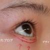 逆さまつげ手術で目が大きく見える。の続きと経過。