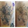 新着ビフォーアフター!和彫りタトゥーの消え方。腕の黒一色