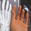 身長が伸びるか知りたい。骨端線が残っているか診てほしい。何科で診察してもらえる?