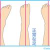 O脚とかま足・バナナ足の弊害