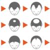 男性脱毛症AGA 新治療薬の実力とは?