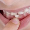 『乳児期』 *あご(顎)の成長と変化