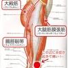 腸脛靭帯炎と診断されました。