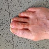 Causes Of Hammertoe Problems