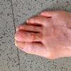 Hammer Toe Cause & Treatment