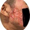 【経過報告】【肌写真有り】初めての瘢痕治療から5週間目の肌の状態