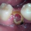 晩期残存乳歯の深部齲蝕・保存症例01