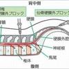 坐骨神経痛の治療3(東京都目黒のペインクリニック)